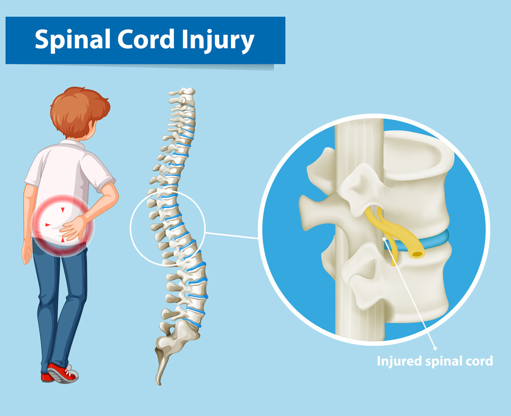 Back and spinal injury claims