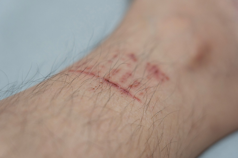 Burns scarring and laceration